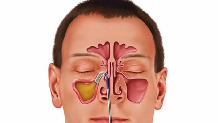 Sinüzit göz ardı edilirse beyin apsesine neden olabilir