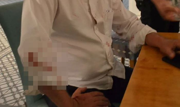 Didim Belediye Başkanı Atabay'a saldırı